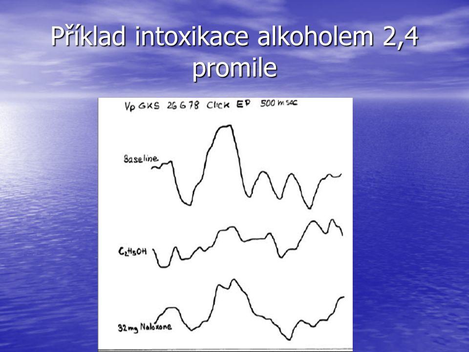 Příklad intoxikace alkoholem 2,4 promile