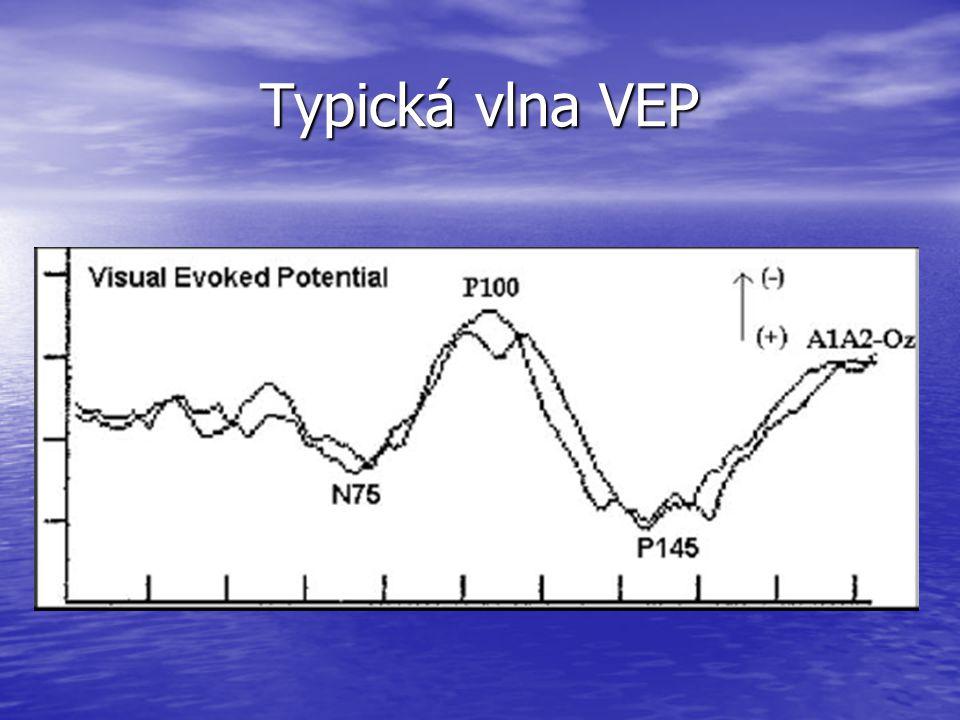 Typická vlna VEP