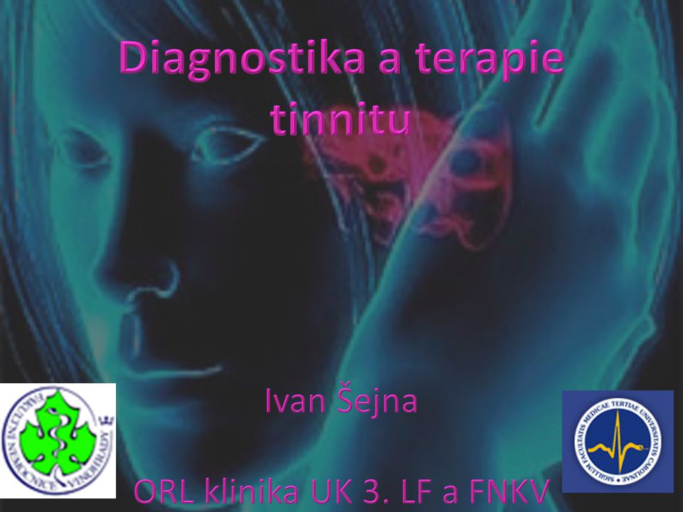 Diagnostika a terapie tinnitu Ivan Šejna ORL klinika UK 3. LF a FNKV
