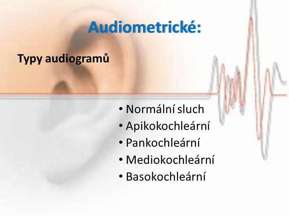 Audiometrické: Typy audiogramů Normální sluch Apikokochleární
