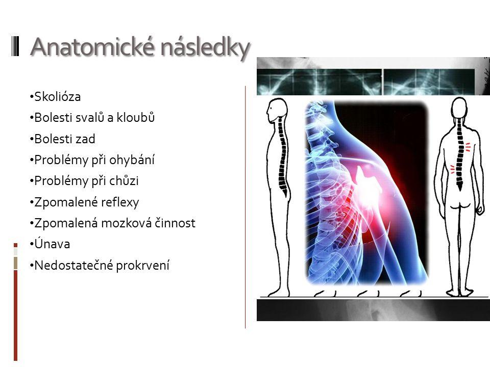 Anatomické následky Skolióza Bolesti svalů a kloubů Bolesti zad