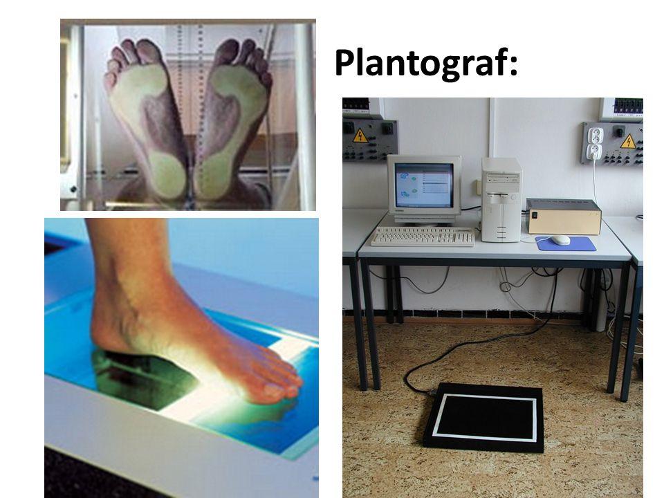 Plantograf: