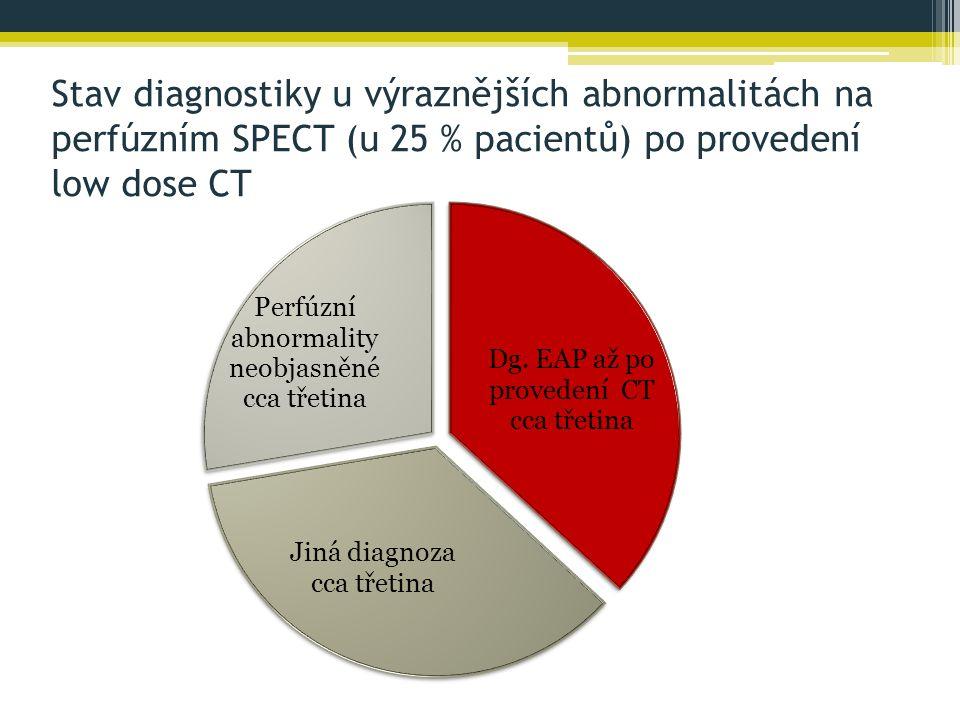 Stav diagnostiky u výraznějších abnormalitách na perfúzním SPECT (u 25 % pacientů) po provedení low dose CT