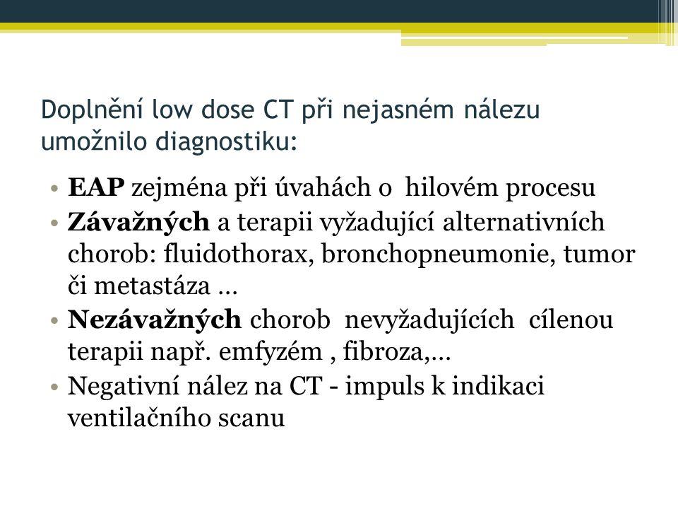 Doplnění low dose CT při nejasném nálezu umožnilo diagnostiku:
