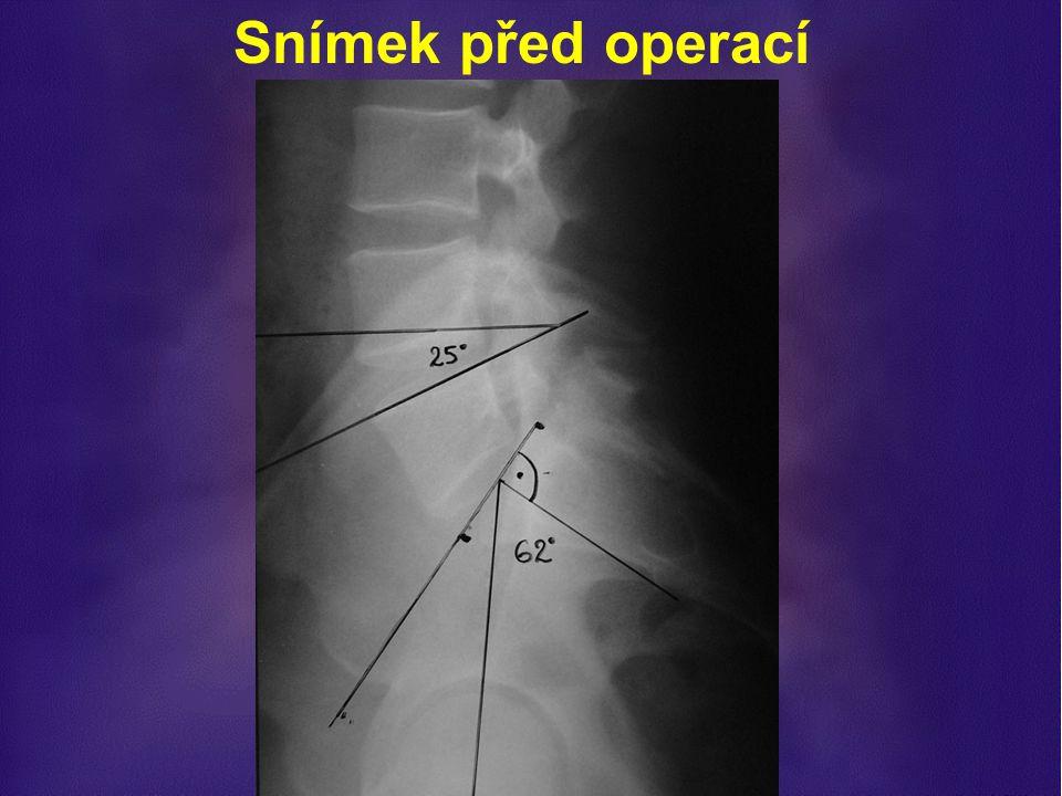 Snímek před operací