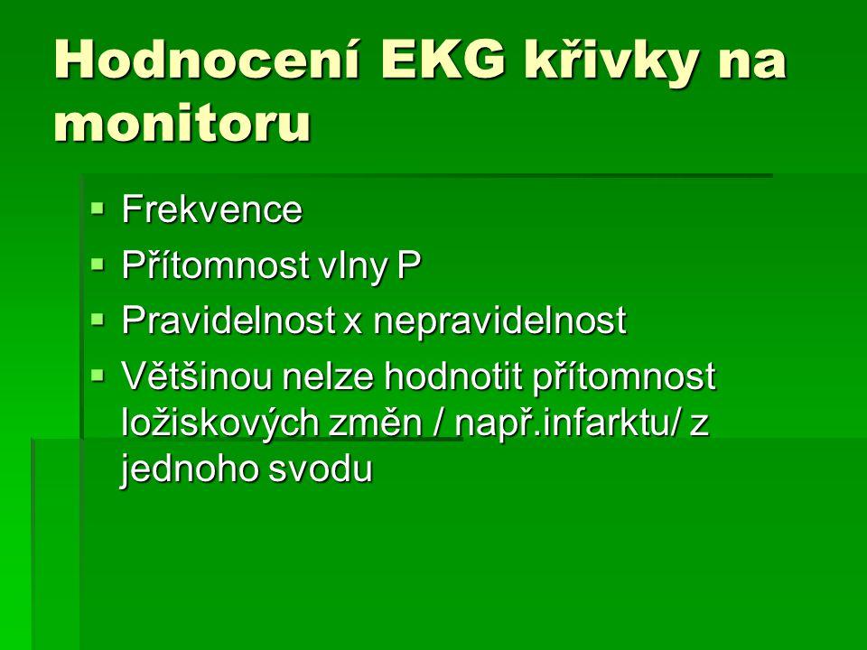 Hodnocení EKG křivky na monitoru