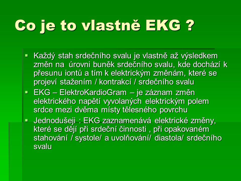Co je to vlastně EKG