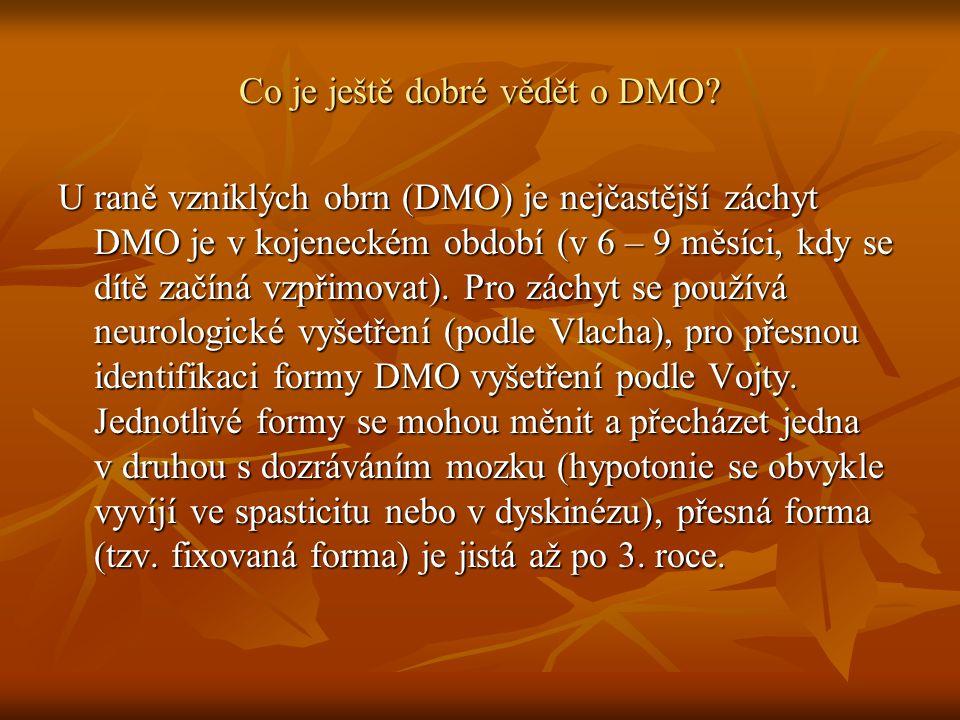 Co je ještě dobré vědět o DMO