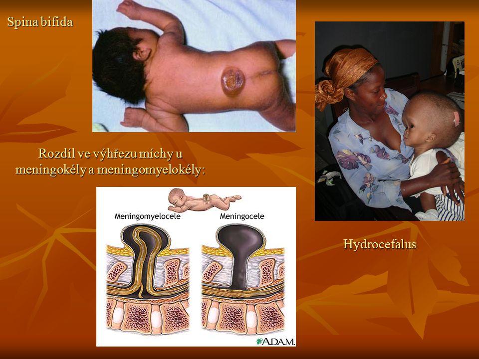 Rozdíl ve výhřezu míchy u meningokély a meningomyelokély:
