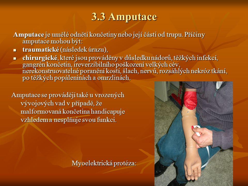 3.3 Amputace Amputace je umělé odnětí končetiny nebo její části od trupu. Příčiny amputace mohou být: