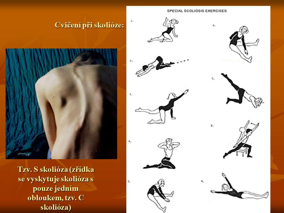 Cvičení při skolióze: Tzv. S skolióza (zřídka se vyskytuje skolióza s pouze jedním obloukem, tzv.