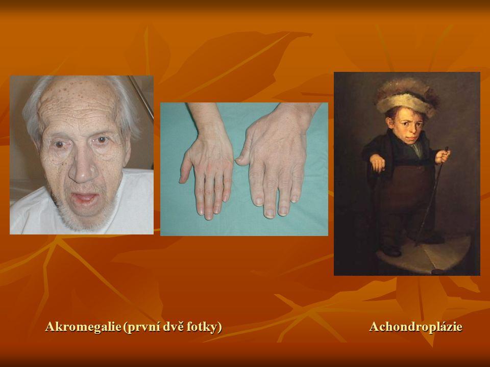Akromegalie (první dvě fotky)