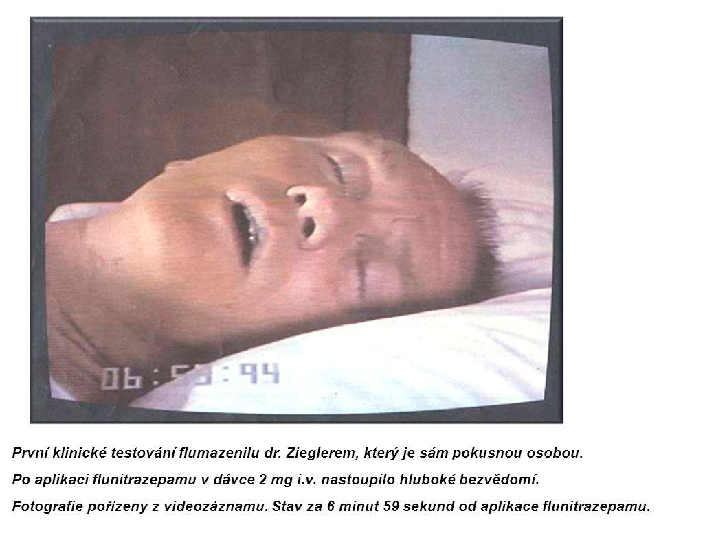 První klinické testování flumazenilu dr