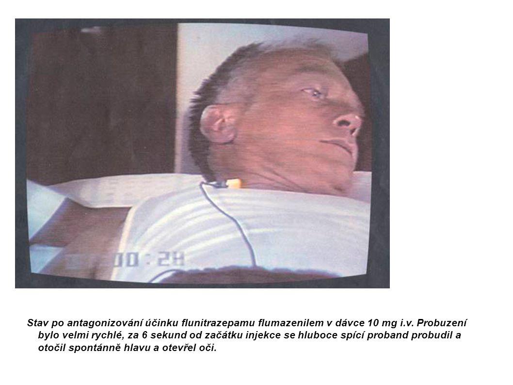 Stav po antagonizování účinku flunitrazepamu flumazenilem v dávce 10 mg i.v.