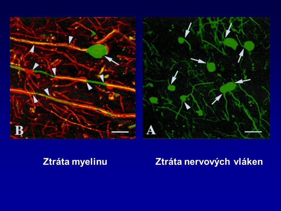Ztráta myelinu Ztráta nervových vláken