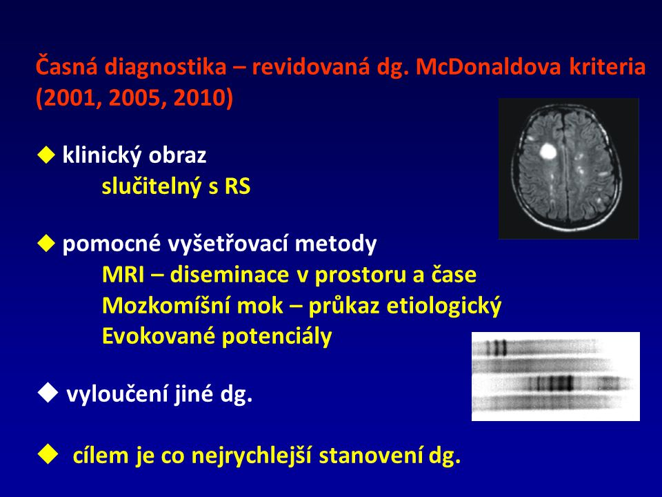 Časná diagnostika – revidovaná dg. McDonaldova kriteria