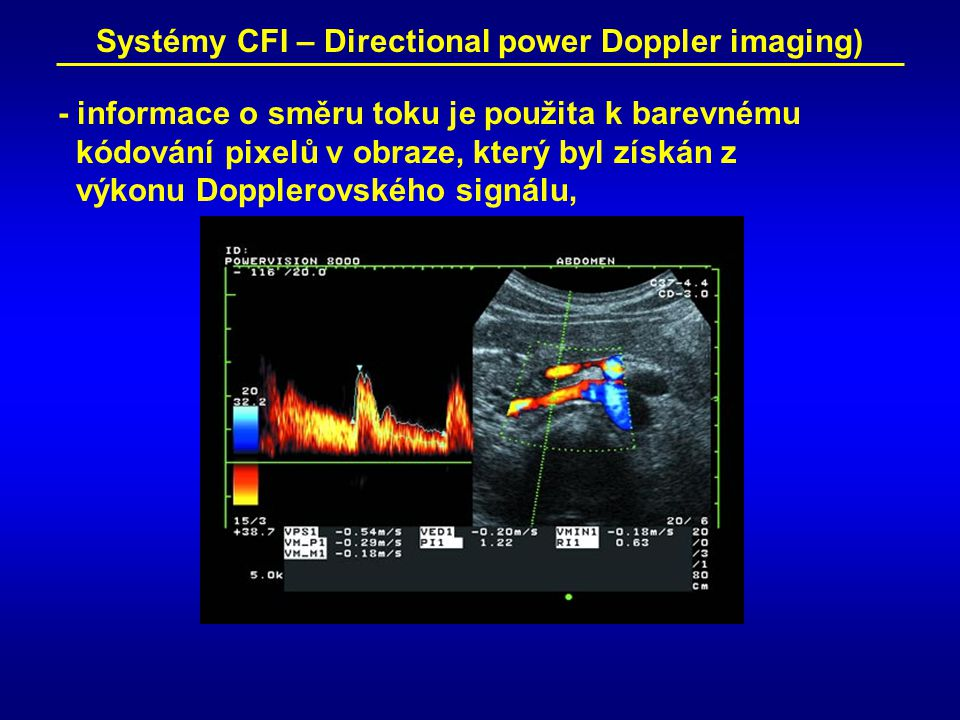 Systémy CFI – Directional power Doppler imaging)
