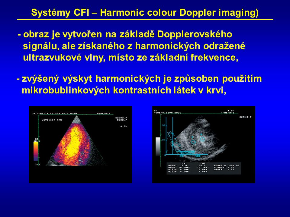 Systémy CFI – Harmonic colour Doppler imaging)
