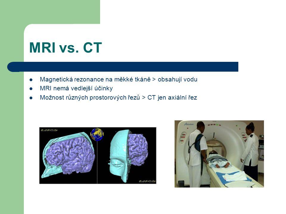 MRI vs. CT Magnetická rezonance na měkké tkáně > obsahují vodu