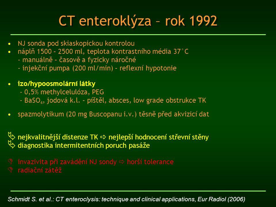 CT enteroklýza – rok 1992 NJ sonda pod skiaskopickou kontrolou