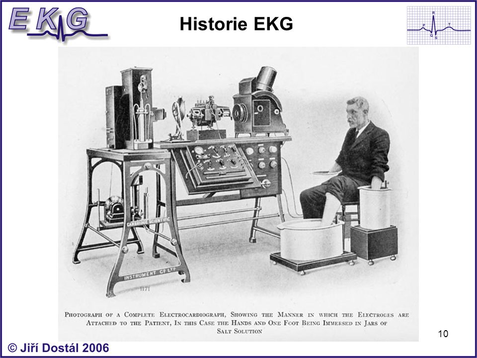 Historie EKG