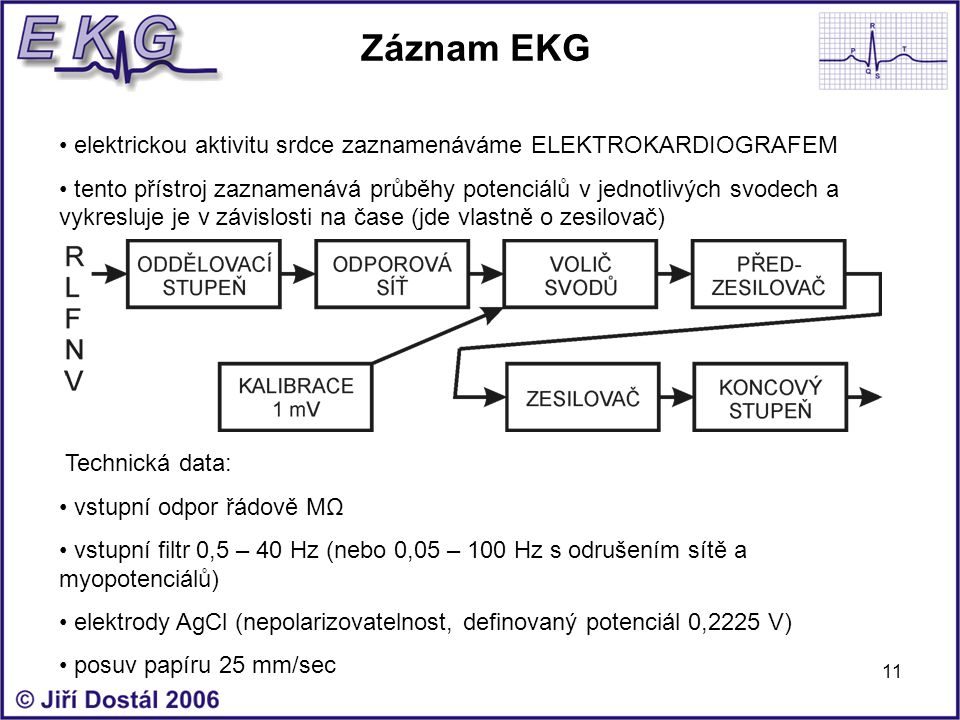 Záznam EKG elektrickou aktivitu srdce zaznamenáváme ELEKTROKARDIOGRAFEM.