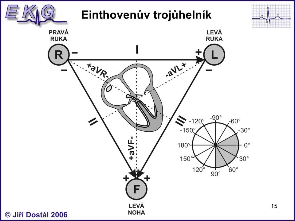 Einthovenův trojůhelník