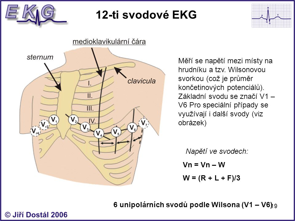 12-ti svodové EKG
