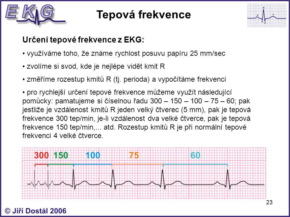 Tepová frekvence Určení tepové frekvence z EKG: