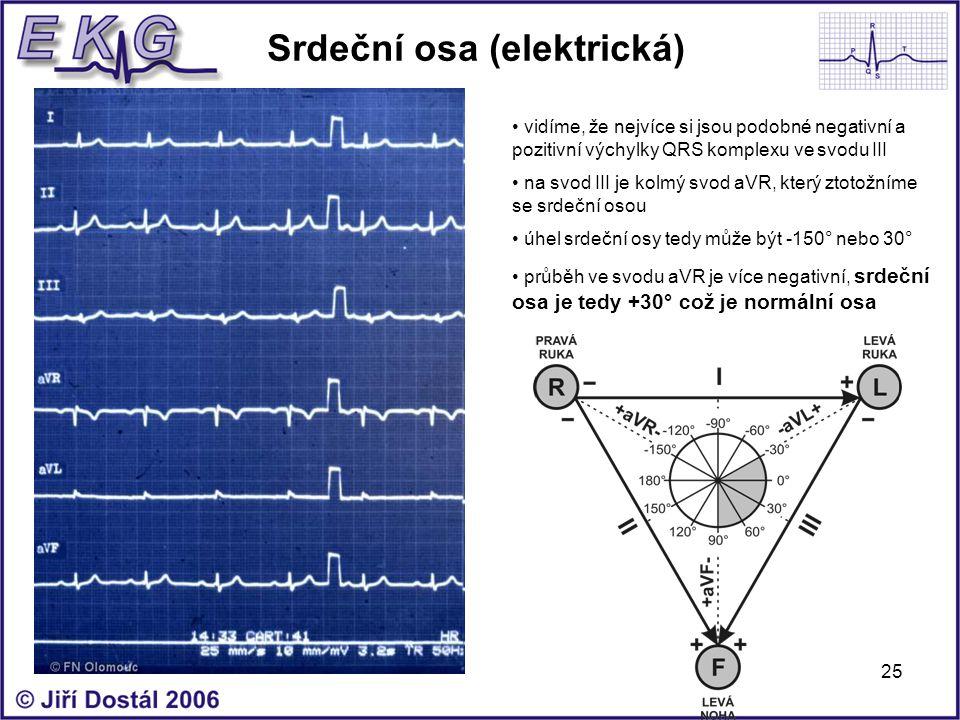 Srdeční osa (elektrická)