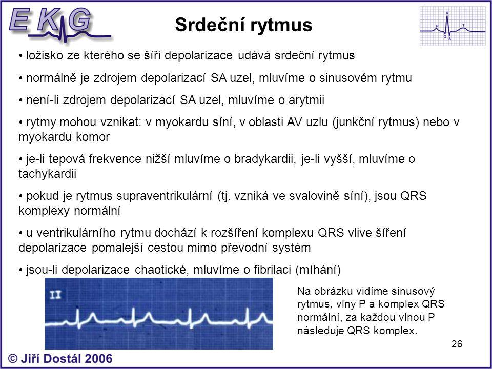 Srdeční rytmus ložisko ze kterého se šíří depolarizace udává srdeční rytmus. normálně je zdrojem depolarizací SA uzel, mluvíme o sinusovém rytmu.