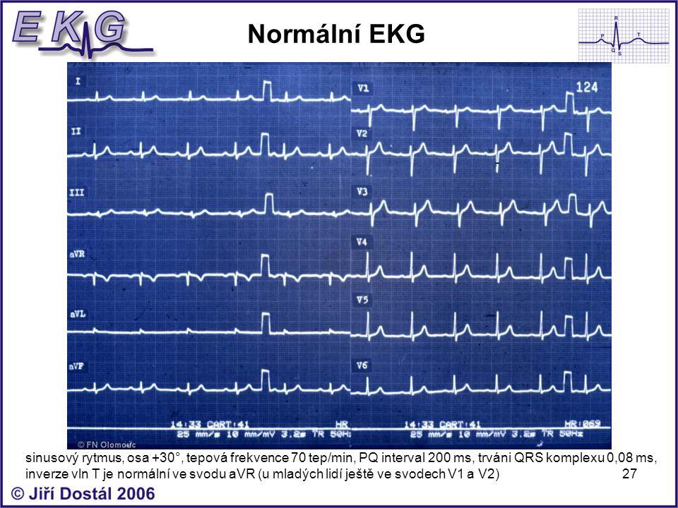 Normální EKG