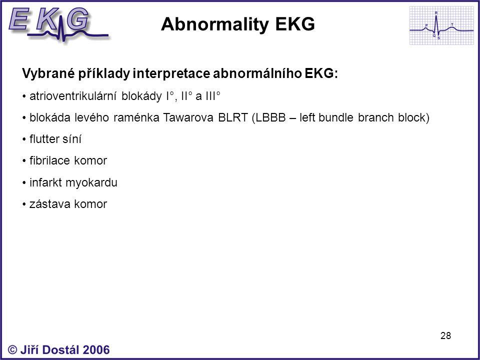 Abnormality EKG Vybrané příklady interpretace abnormálního EKG: