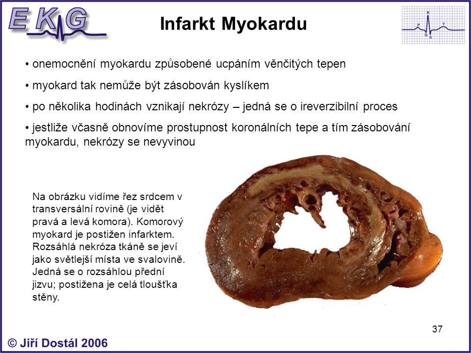 Infarkt Myokardu onemocnění myokardu způsobené ucpáním věnčitých tepen