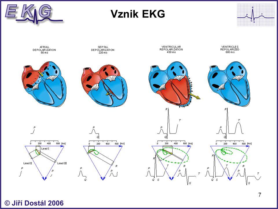Vznik EKG