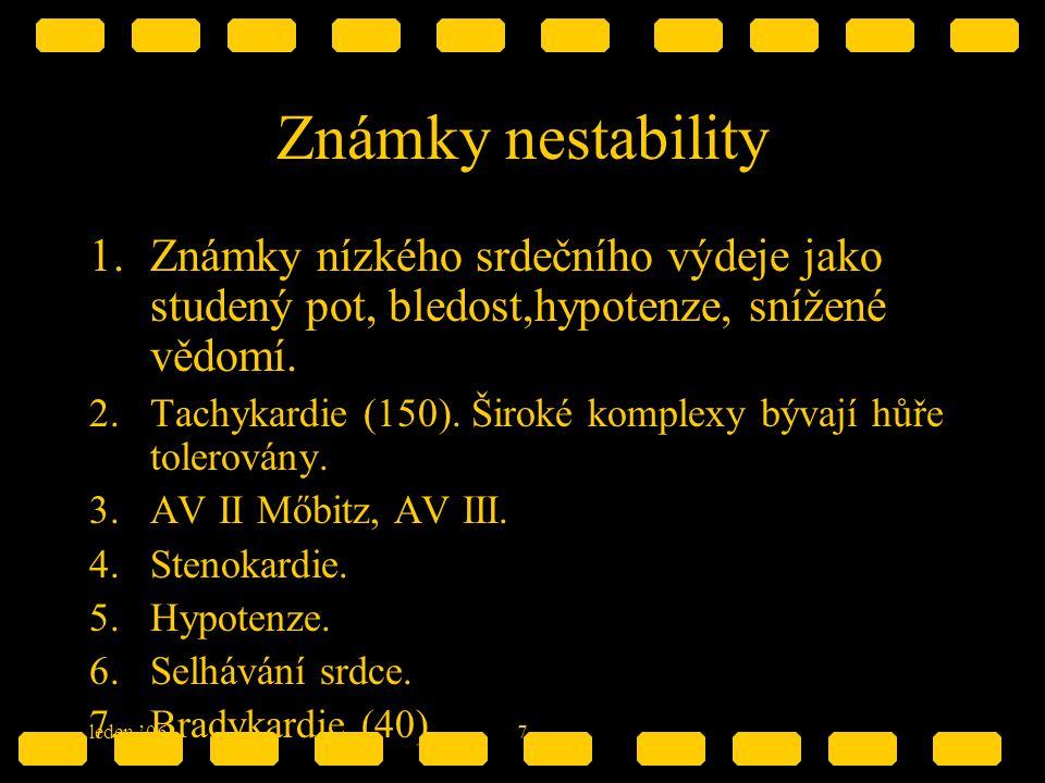 Známky nestability Známky nízkého srdečního výdeje jako studený pot, bledost,hypotenze, snížené vědomí.
