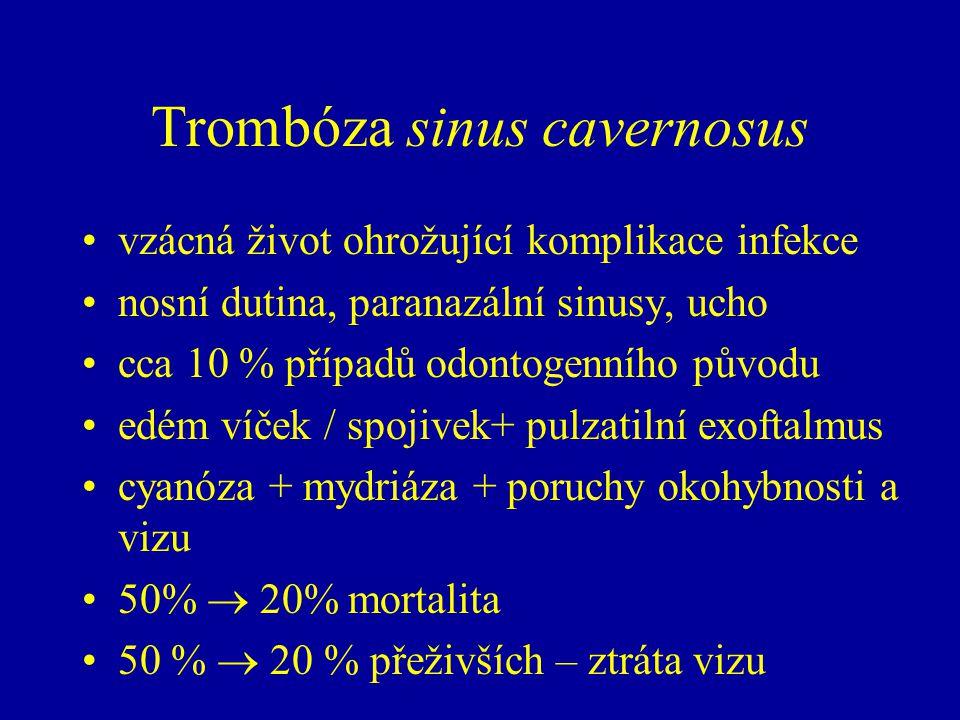 Trombóza sinus cavernosus