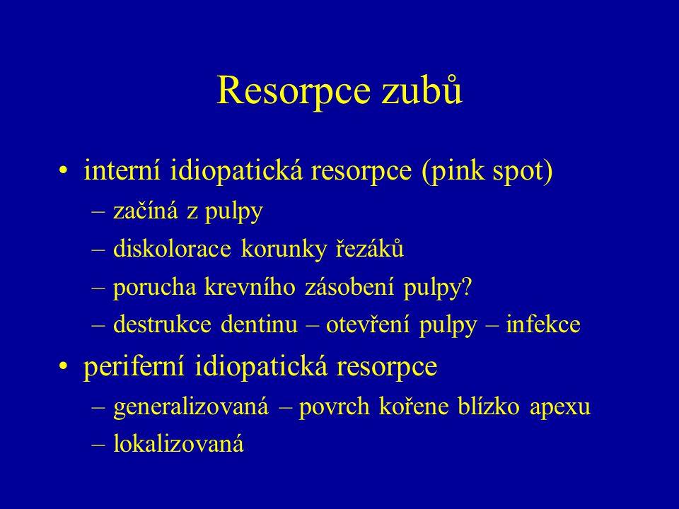 Resorpce zubů interní idiopatická resorpce (pink spot)