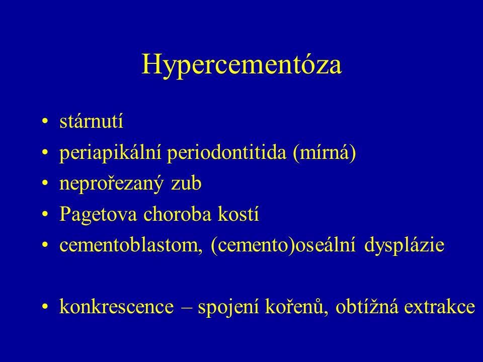 Hypercementóza stárnutí periapikální periodontitida (mírná)