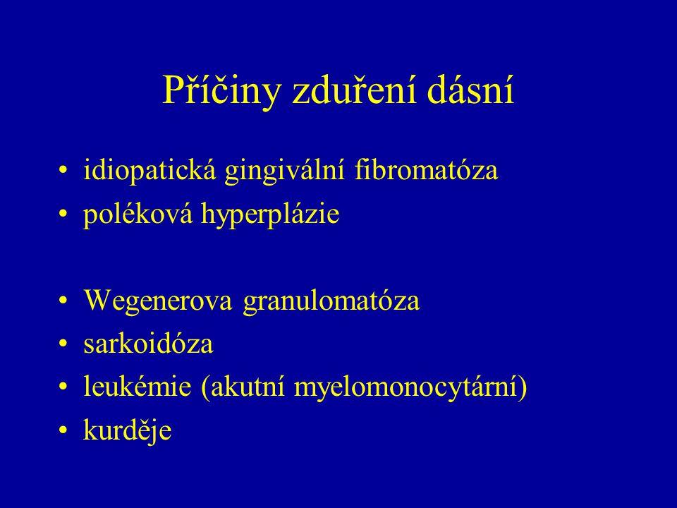 Příčiny zduření dásní idiopatická gingivální fibromatóza