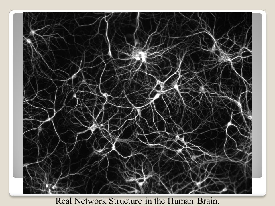 Real Network Structure in the Human Brain.