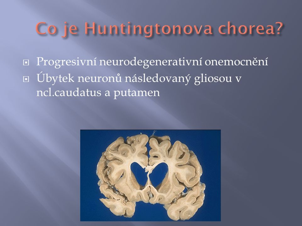 Co je Huntingtonova chorea