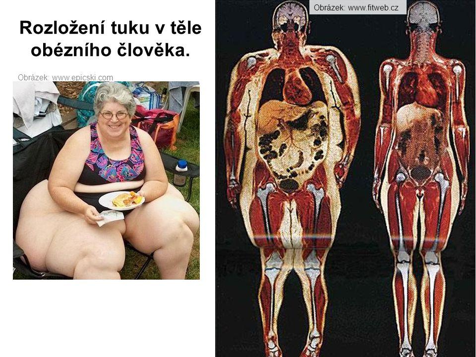 Rozložení tuku v těle obézního člověka.