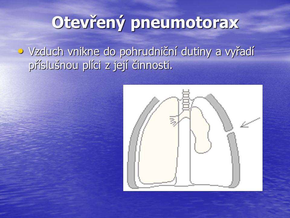 Otevřený pneumotorax Vzduch vnikne do pohrudniční dutiny a vyřadí příslušnou plíci z její činnosti.