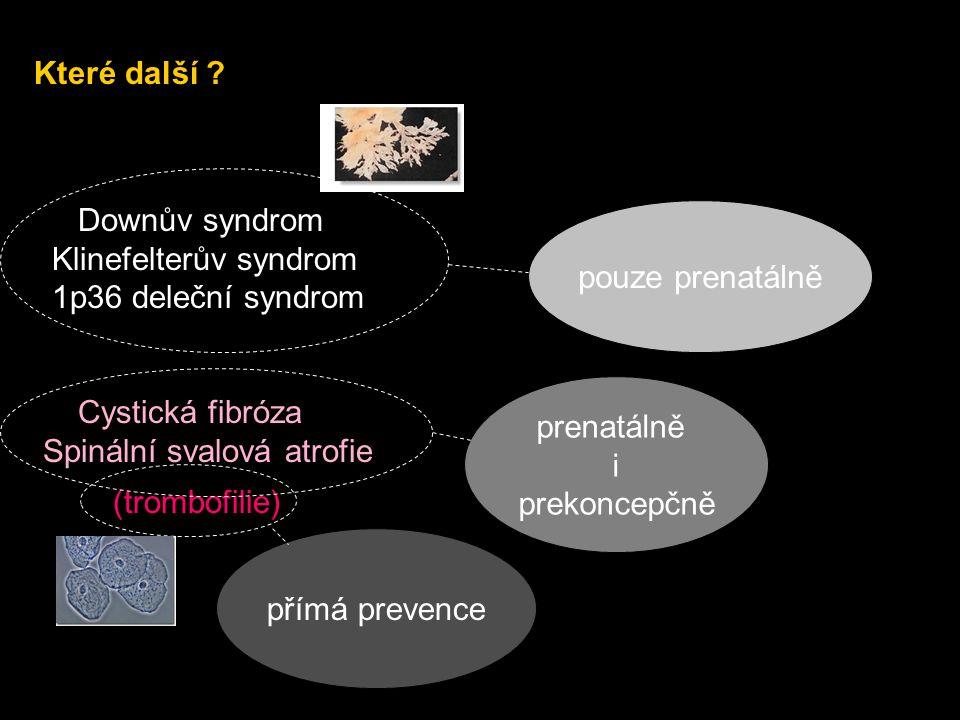 Které další Downův syndrom. Klinefelterův syndrom. 1p36 deleční syndrom. Cystická fibróza. Spinální svalová atrofie.