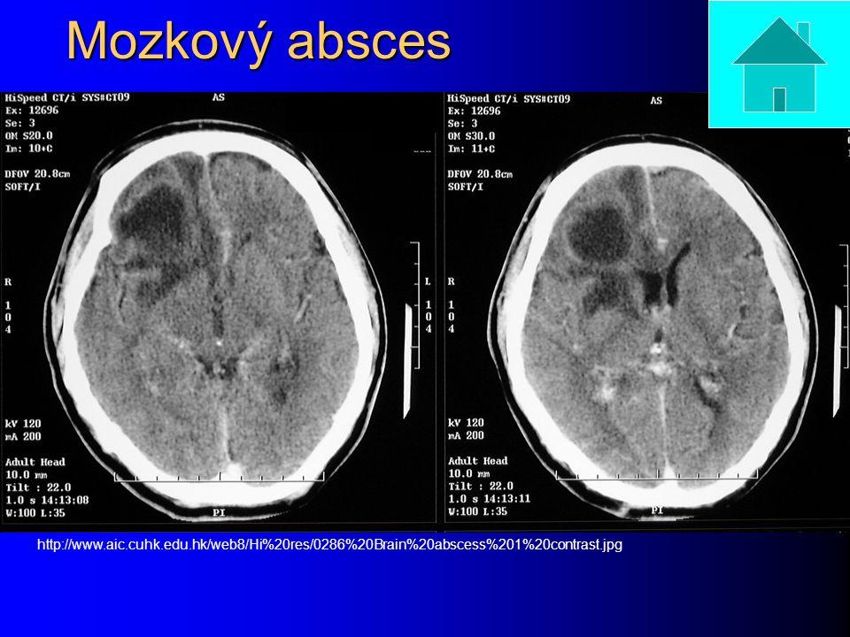 Mozkový absces http://www.aic.cuhk.edu.hk/web8/Hi%20res/0286%20Brain%20abscess%201%20contrast.jpg