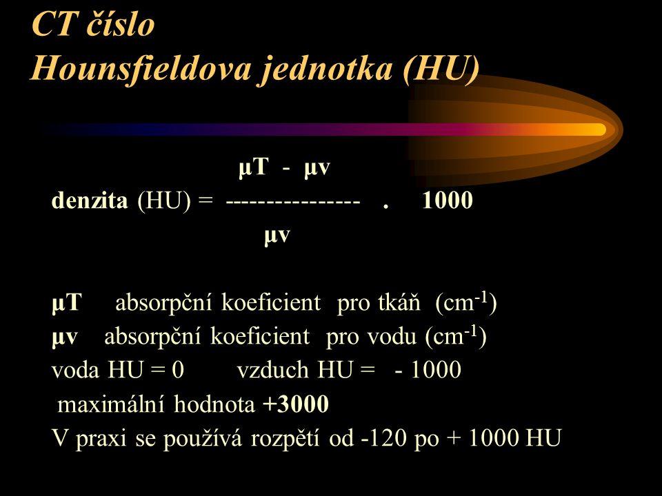 CT číslo Hounsfieldova jednotka (HU)