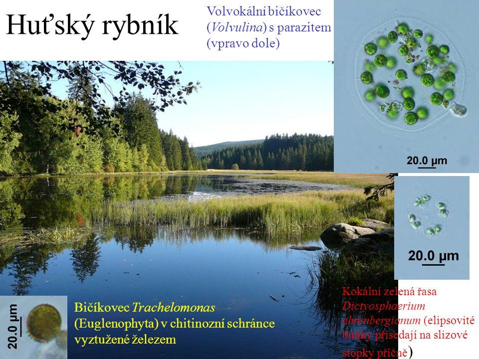 Huťský rybník Volvokální bičíkovec (Volvulina) s parazitem (vpravo dole)