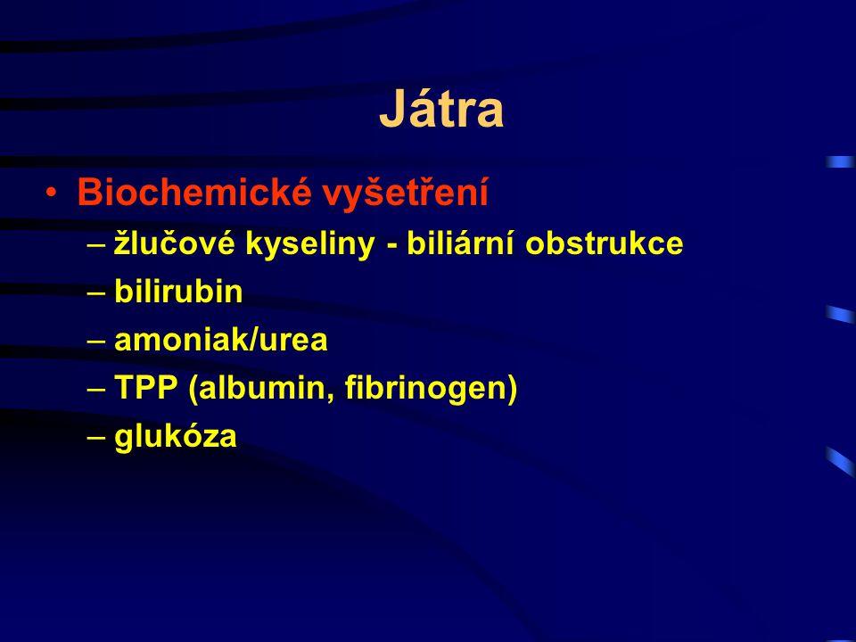 Játra Biochemické vyšetření žlučové kyseliny - biliární obstrukce
