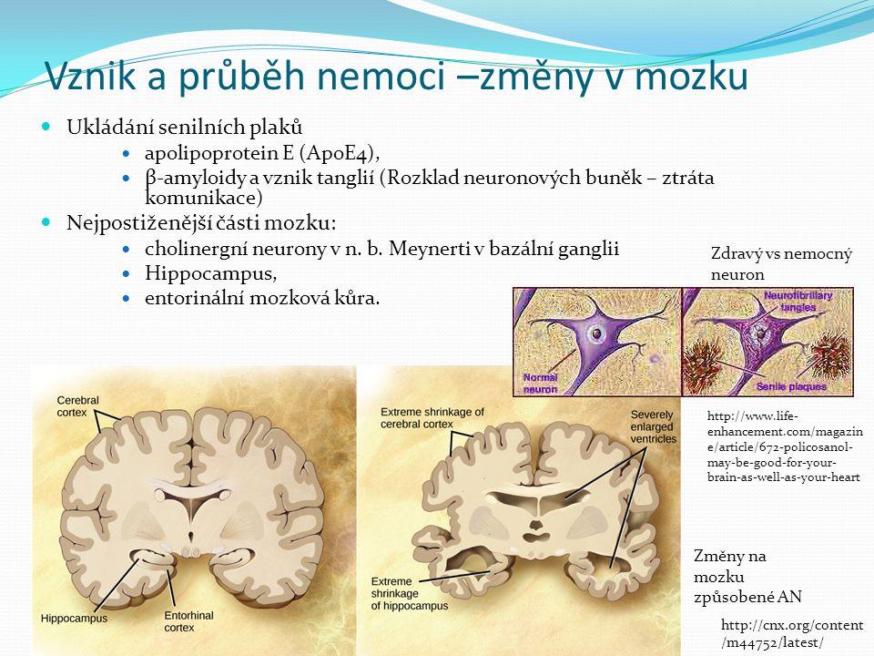 Vznik a průběh nemoci –změny v mozku